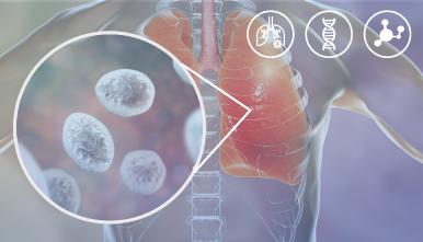 VIASURE-–-Pneumocystis-jirovecii-RT-PCR